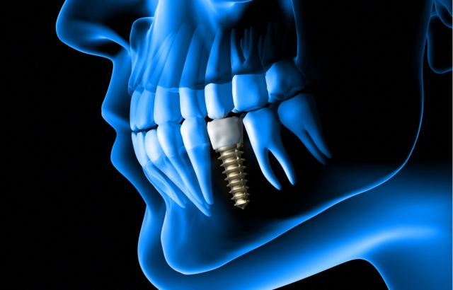 Ποια είναι τα καλύτερα εμφυτεύματα δοντιών