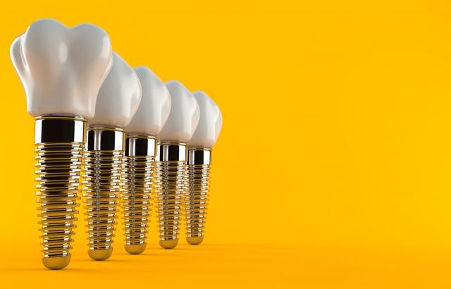 Όσα πρέπει να ξέρεις για τα οδοντικά εμφυτεύματα