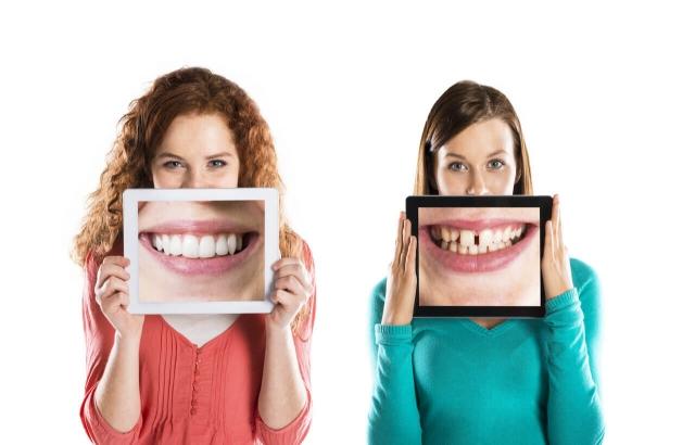 Στάδια αποκατάστασης ενός κατεστραμμένου χαμόγελου